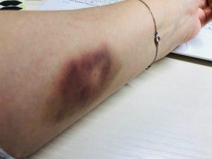 重症筋無力症 免疫グロブリン療法